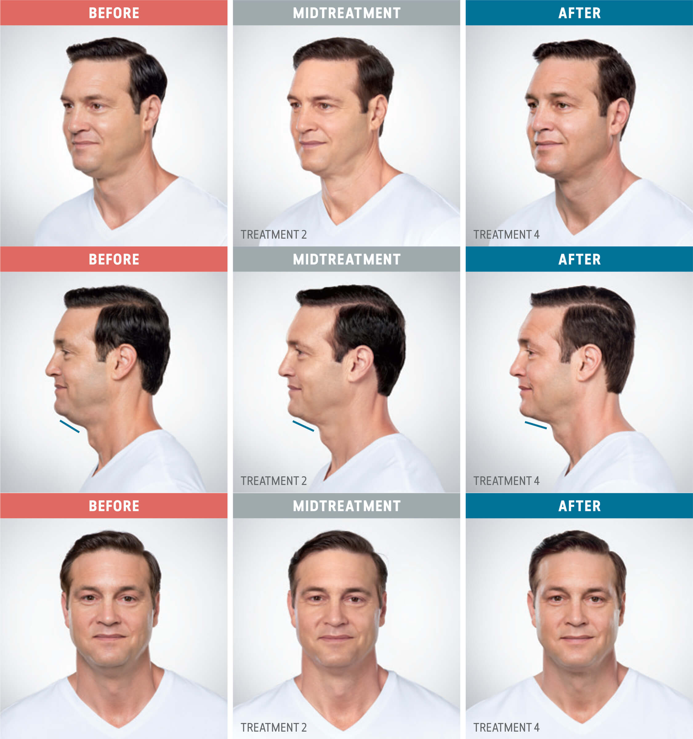 Before and after, Kybella