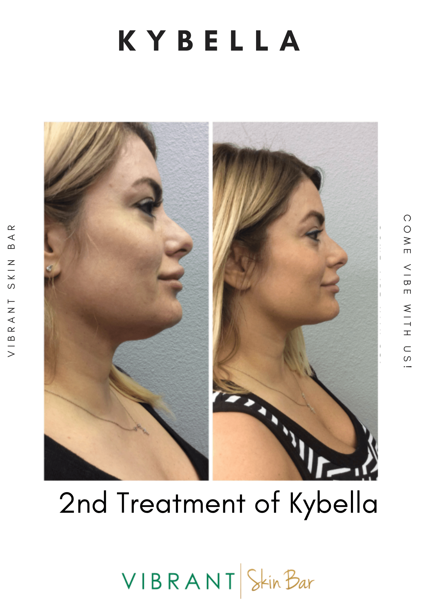 Before and after - 2nd treatment of kybella