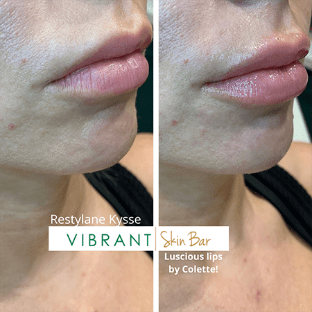 Before and after, filler