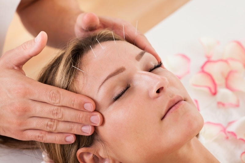 A woman undergoing acupuncture as a Botox alternative