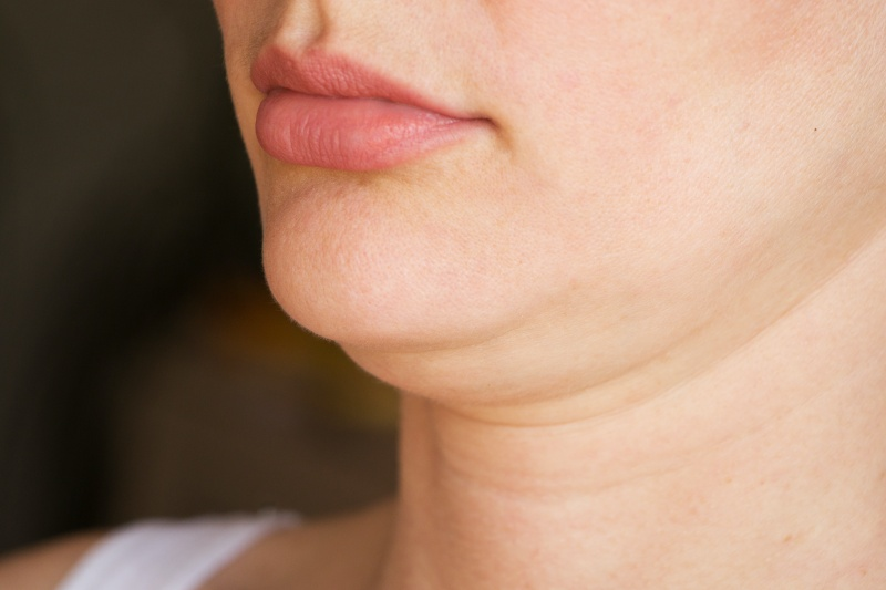 double chin before treatment