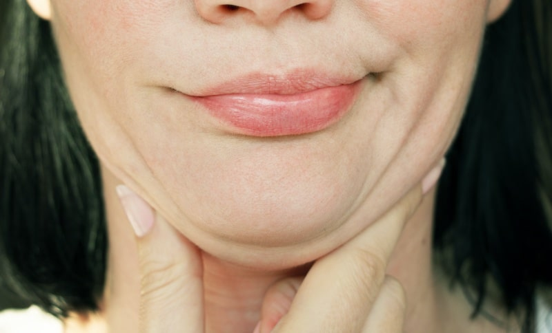 Woman with a double chin, Kybella vs CoolSculpting
