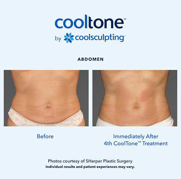 Cooltone before and after in a female's abdomen 3