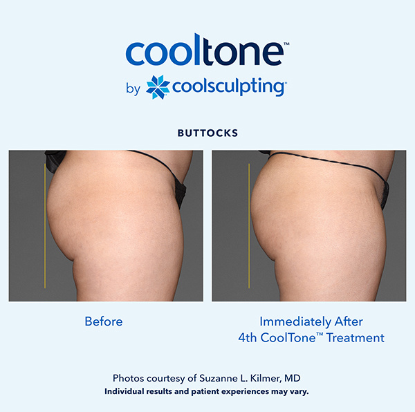 Cooltone before and after in a female's buttocks