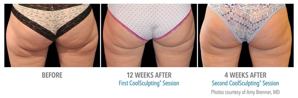 Before and after Coolsculpting on buttocks