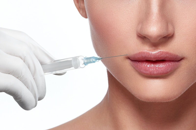 Using injections to dissolve lip fillers