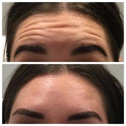 Botox in Phoenix before and after