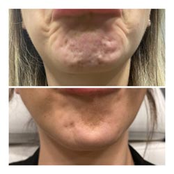 Botox in Phoenix before and after 2