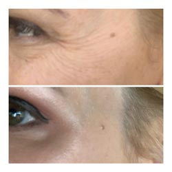 Botox in Phoenix before and after 3