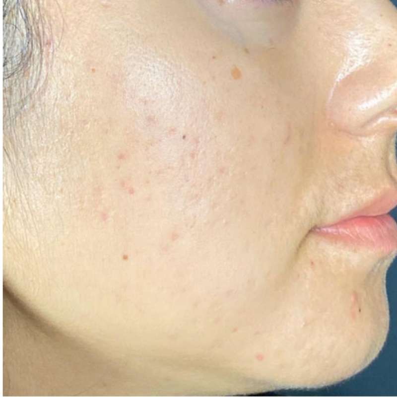 Boxcar acne scars example