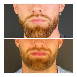 Dermal Fillers - Fuller lips before and after lip dermal fillers at Vibrant Skin Bar in Phoenix
