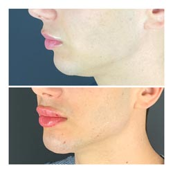 Dermal Fillers - Before and after lip dermal fillers at Vibrant Skin Bar in Phoenix featuring a young man