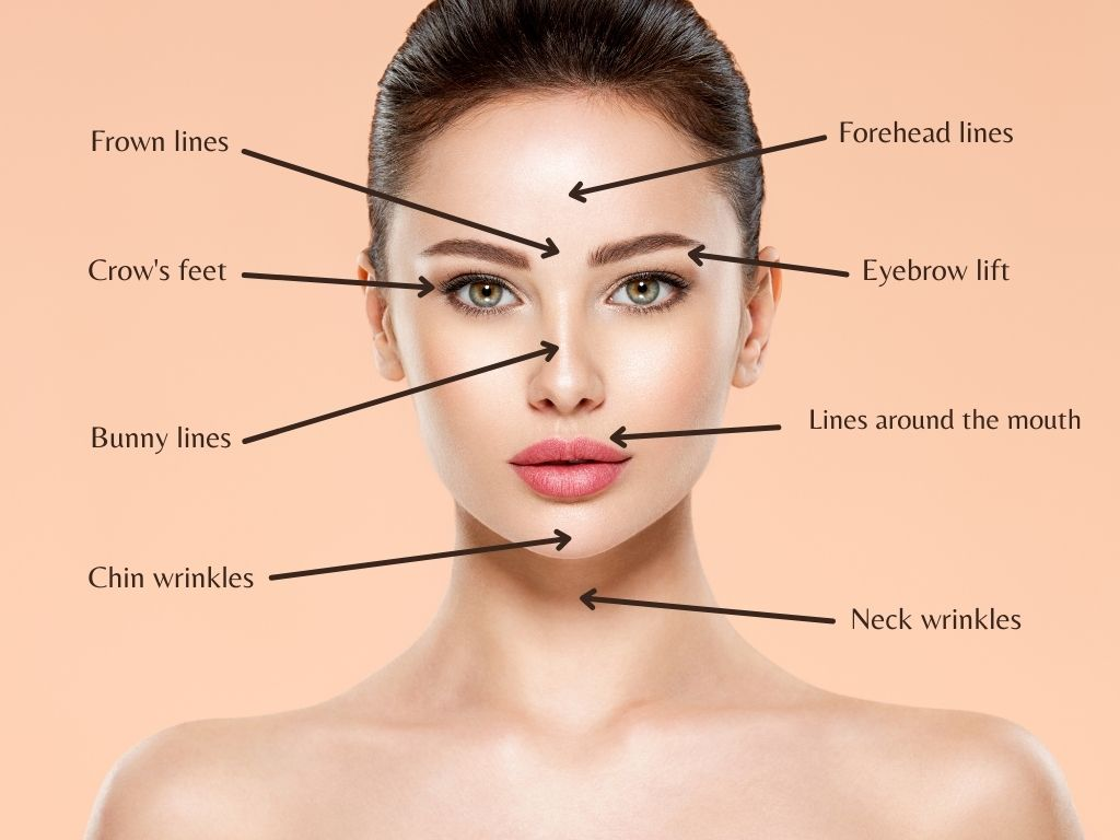 Common face areas for Botox injections and treatments.