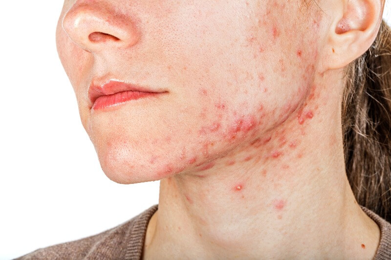 Cysts are severe, inflammatory acne deep under the skin.