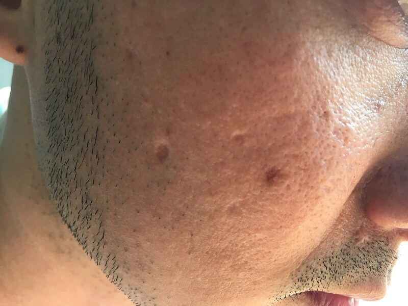 Hypertrophic acne scar example