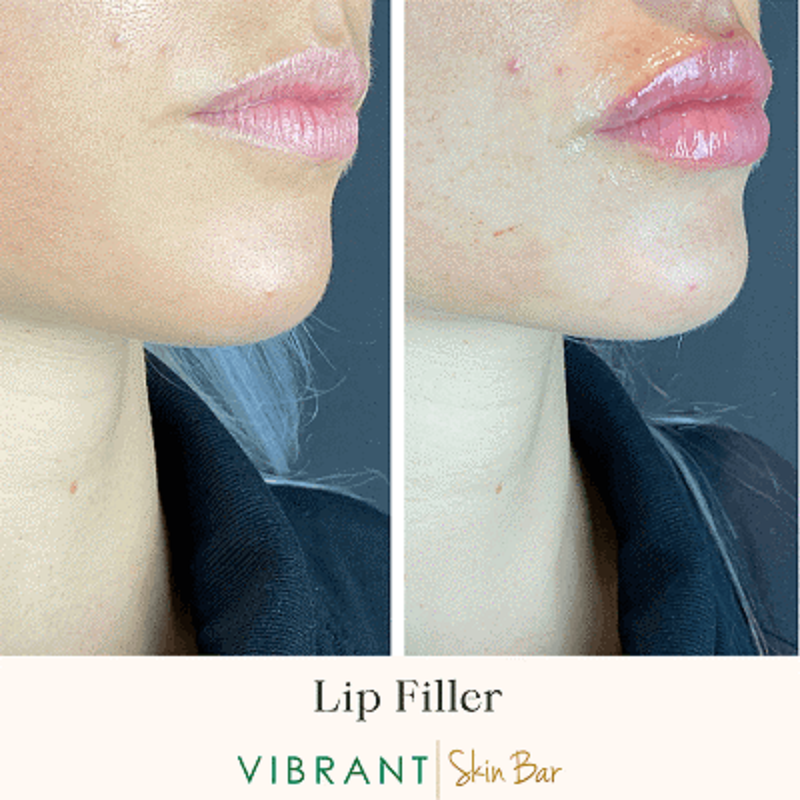 Lip Filler Before and after images