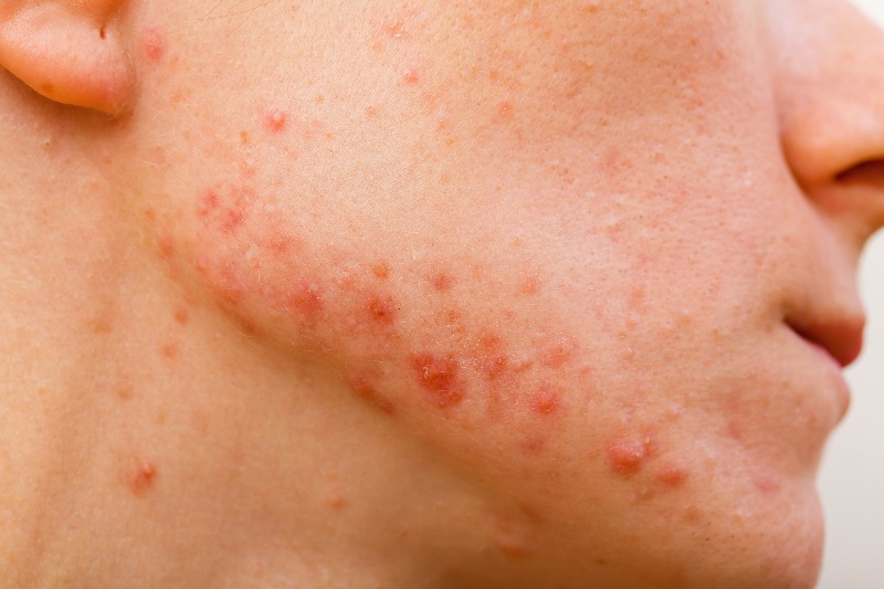 Papules are inflammatory, swollen bumps on the skin.