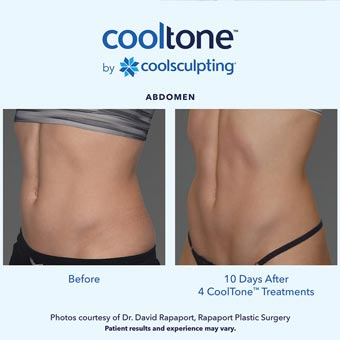 Cooltone before and after in a female's abdomen