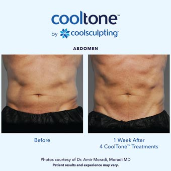 Cooltone before and after in a male's abdomen