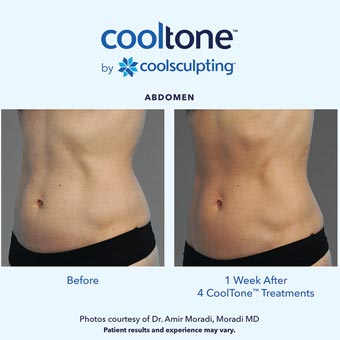 Cooltone before and after in a female's abdomen 2