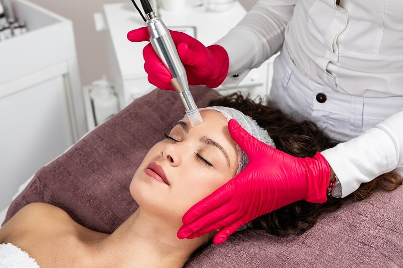 Microneedling treatment for improving skin tone and texture.