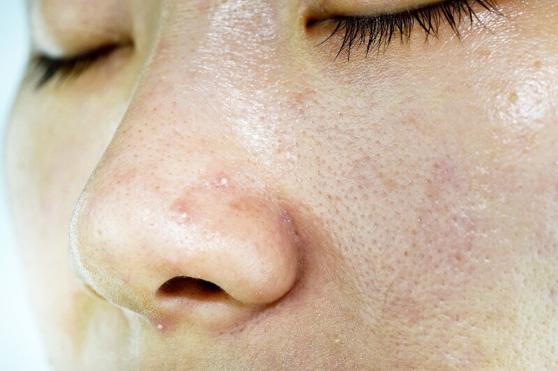 Whiteheads are non-inflammatory acne beneath the skin.